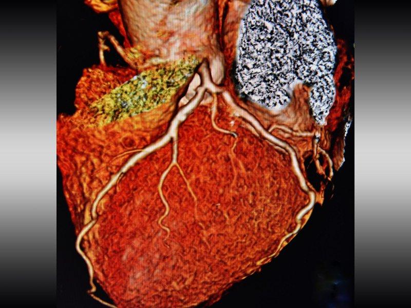 سیتی آنژیوگرافی قلب